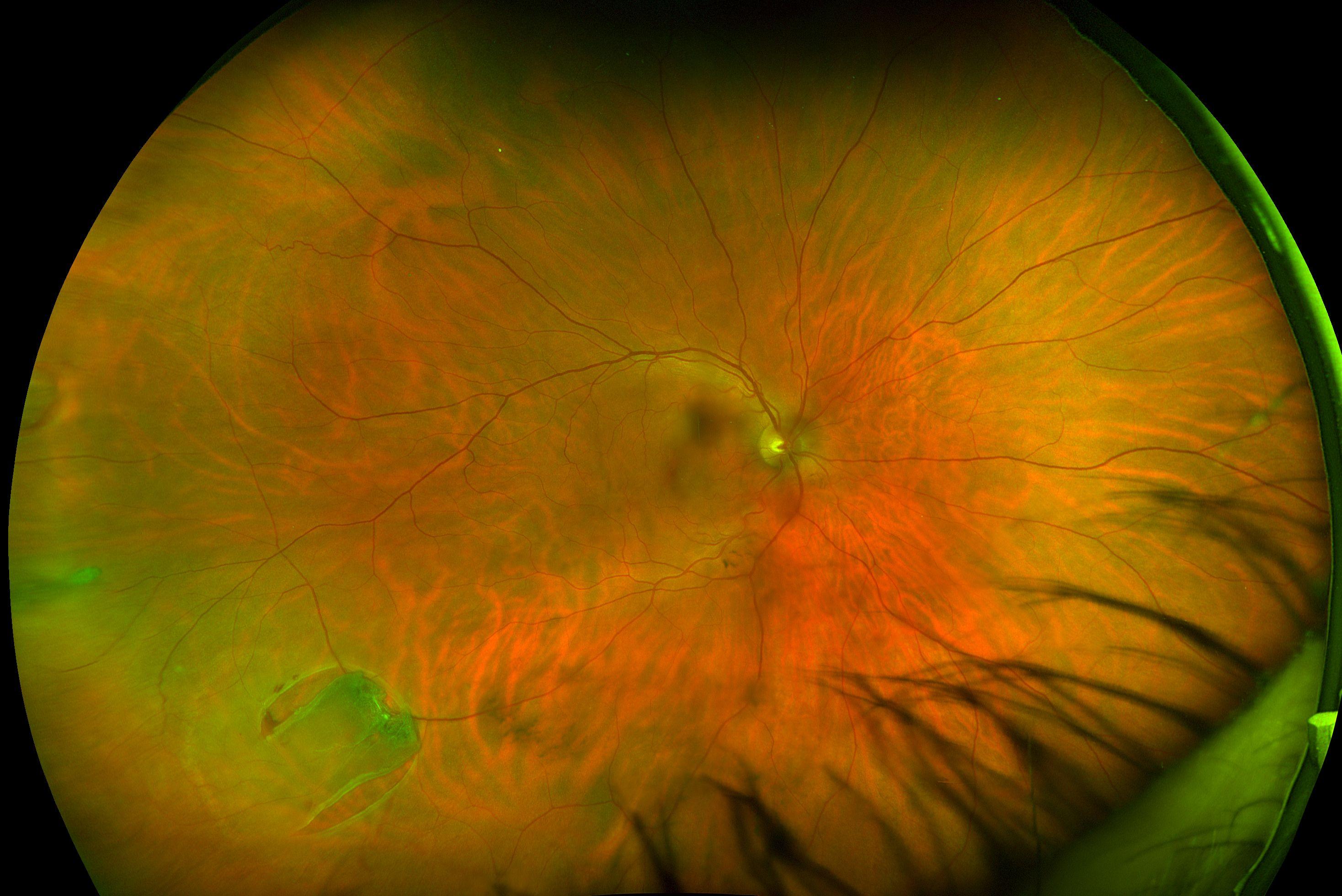 Optomap Colour Horseshoe Tear